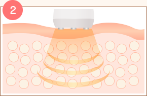 脂肪細胞にキャビテーションを照射