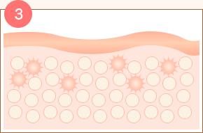 脂肪細胞の中にできた気泡が破裂