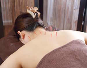 博多区 鍼灸