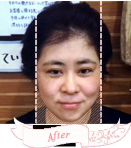 小顔矯正施術後