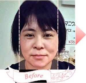 小顔矯正施術前